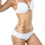Top 3 Trending Non-Surgical Fat Reduction Procedures