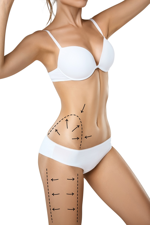 Top 3 Trending Non-Surgical Fat Reduction Procedures